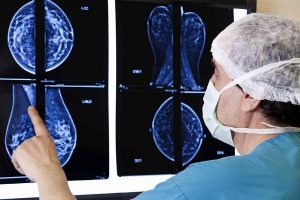 TNM system or breast cancer rating
